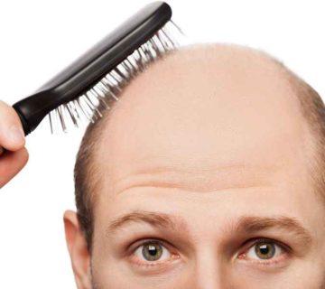 دلایل ریزش مو و راه های جلوگیری از آن