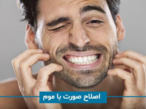 اصلاح صورت با استفاده موم