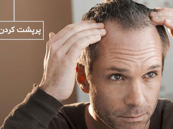 پرپشت کردن مو سر