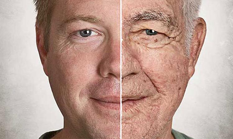 جوتنسازی پوست صورت