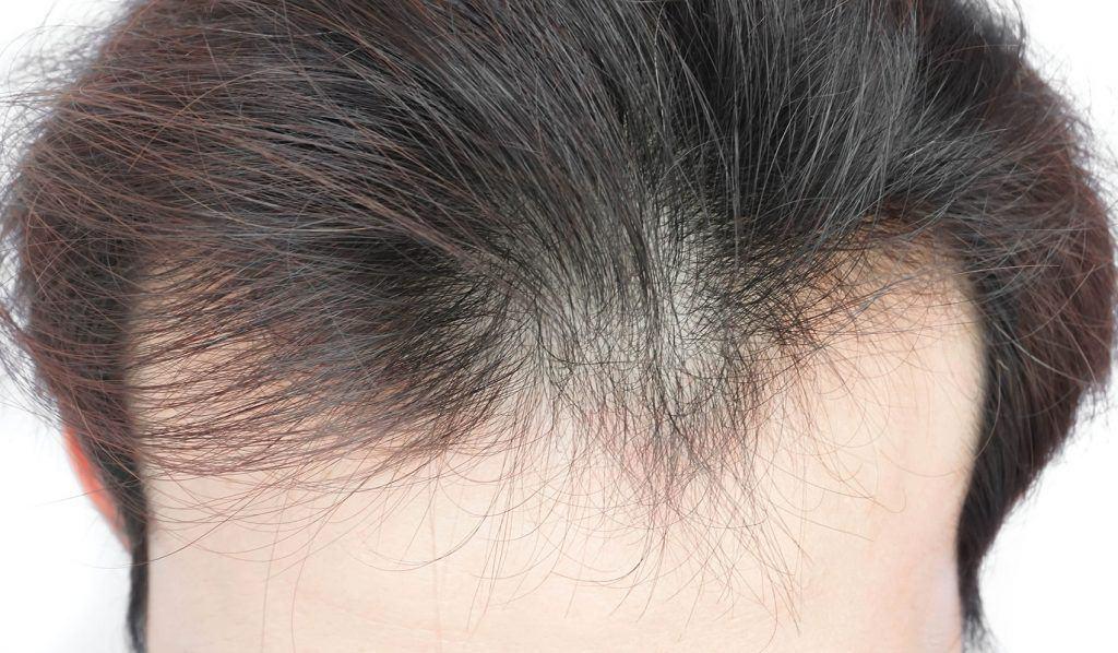 نحوه مراقبت از مو نازک
