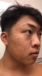 پوست دارای جای آکنه