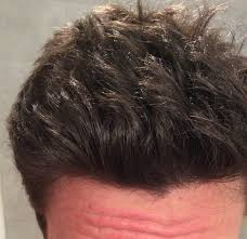 تصویری از خط رویش مو