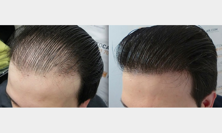 تصویری ازقبل و بعد ترمیم خط رویش مو