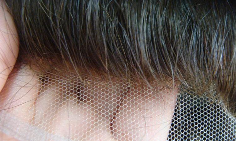 چسباندن پروتز مو به سر با چسب